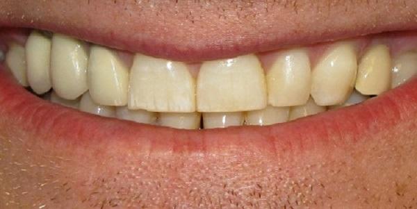 Granulom zuba